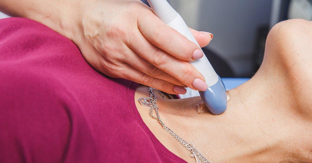 Előzd meg a bajt: Carotis - nyaki ütőér ultrahang vizsgálat