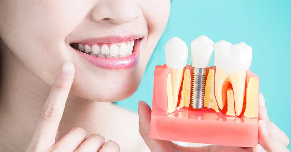 Egyrészes fogászati implantátum