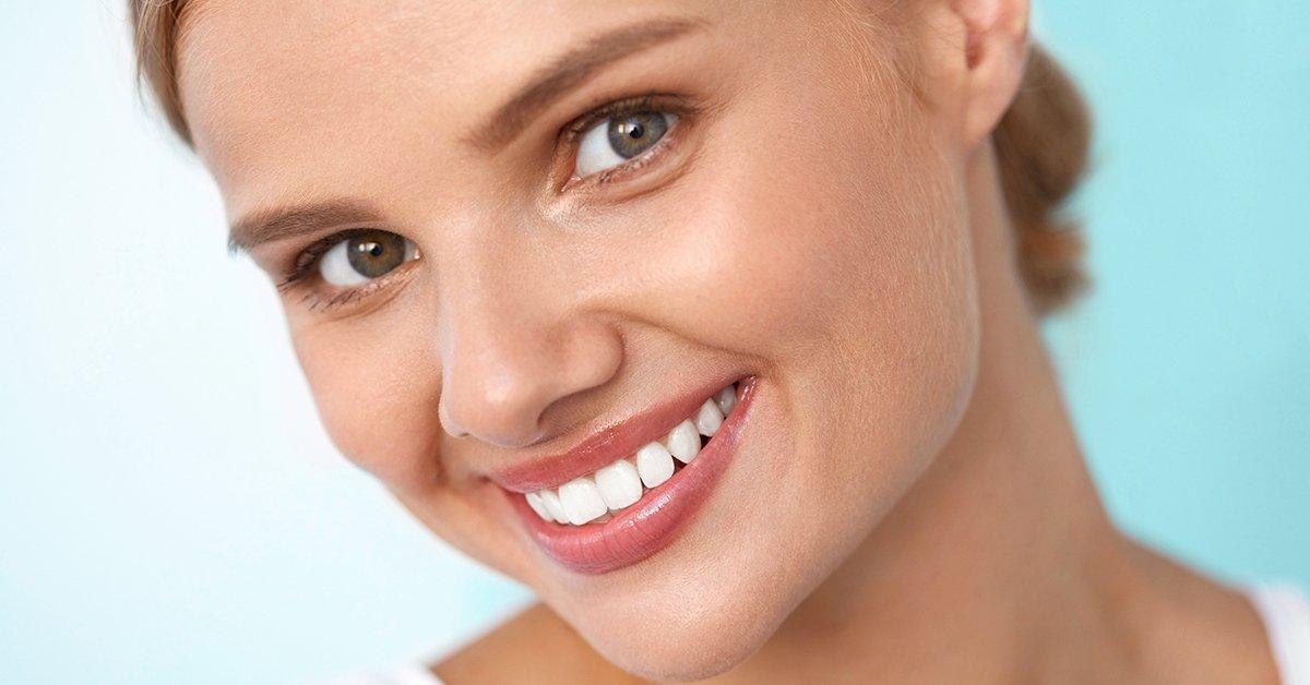Csodás mosolyért: LED lámpás fehérítés fogkő-eltávolítással