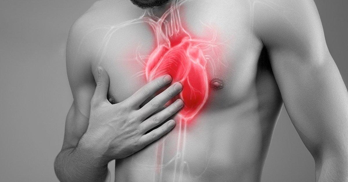 Hallgass a szívedre: terheléses kardiológiai szűrés