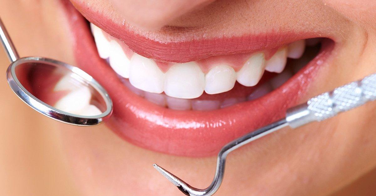 Minőségi ultrahangos fogkő-eltávolítás polírozással