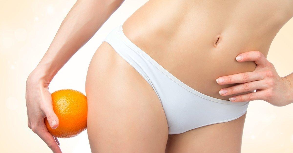 Cellulit stop: 10 kezelésből álló narancsbőr program