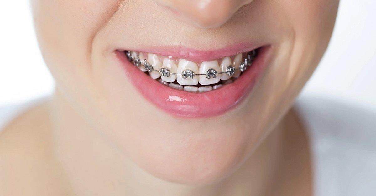 Fém brackettekből álló rögzített fogszabályozó készülék