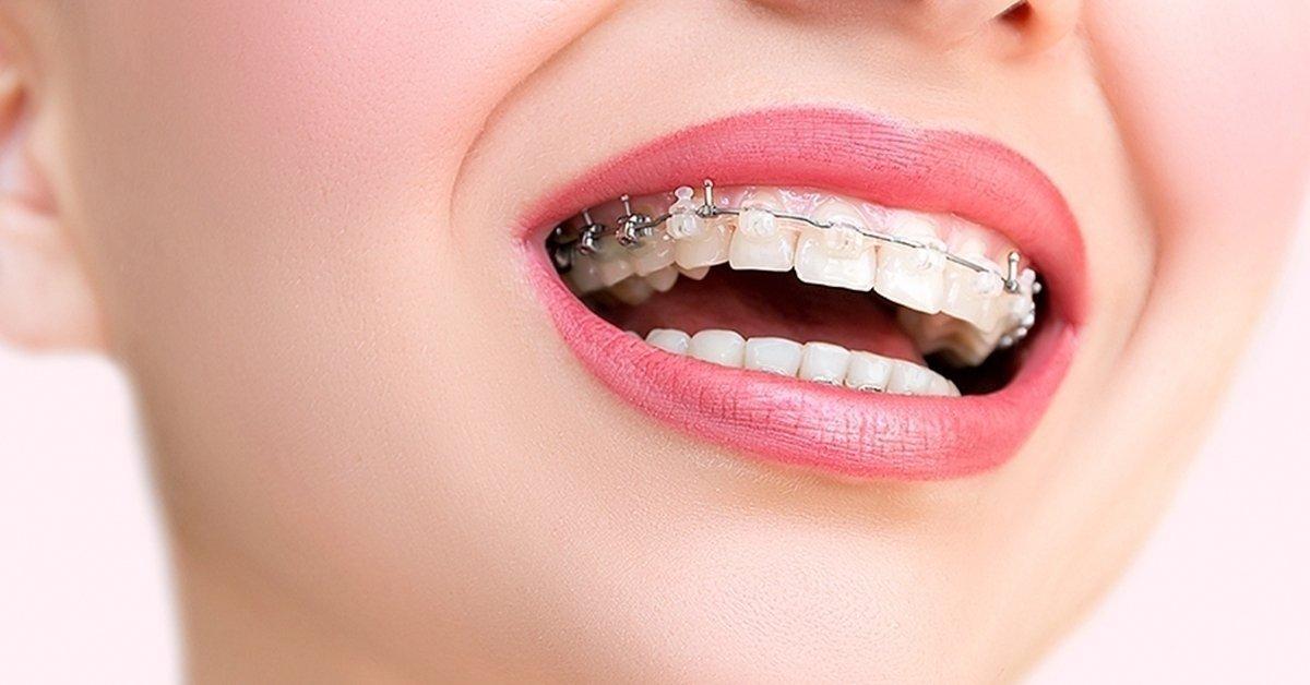 Helló, tökéletes mosoly: fogszabályozás egy fogívre