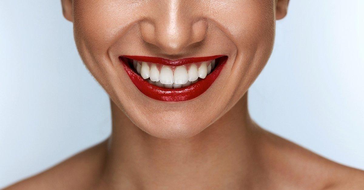 Egy szép mosoly öltöztet: professzionális fogfehérítés