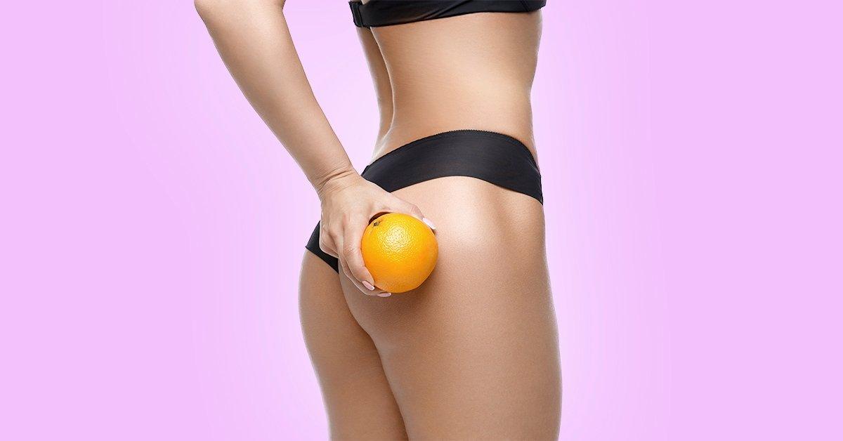 Mondj búcsút a narancsbőrnek: Thermage kezelés combra