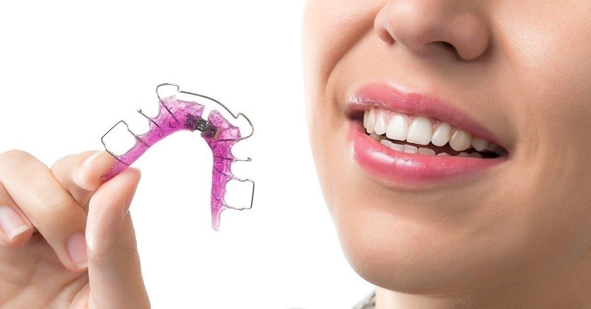 A magabiztos mosolyért: kivehető fogszabályozó készülék