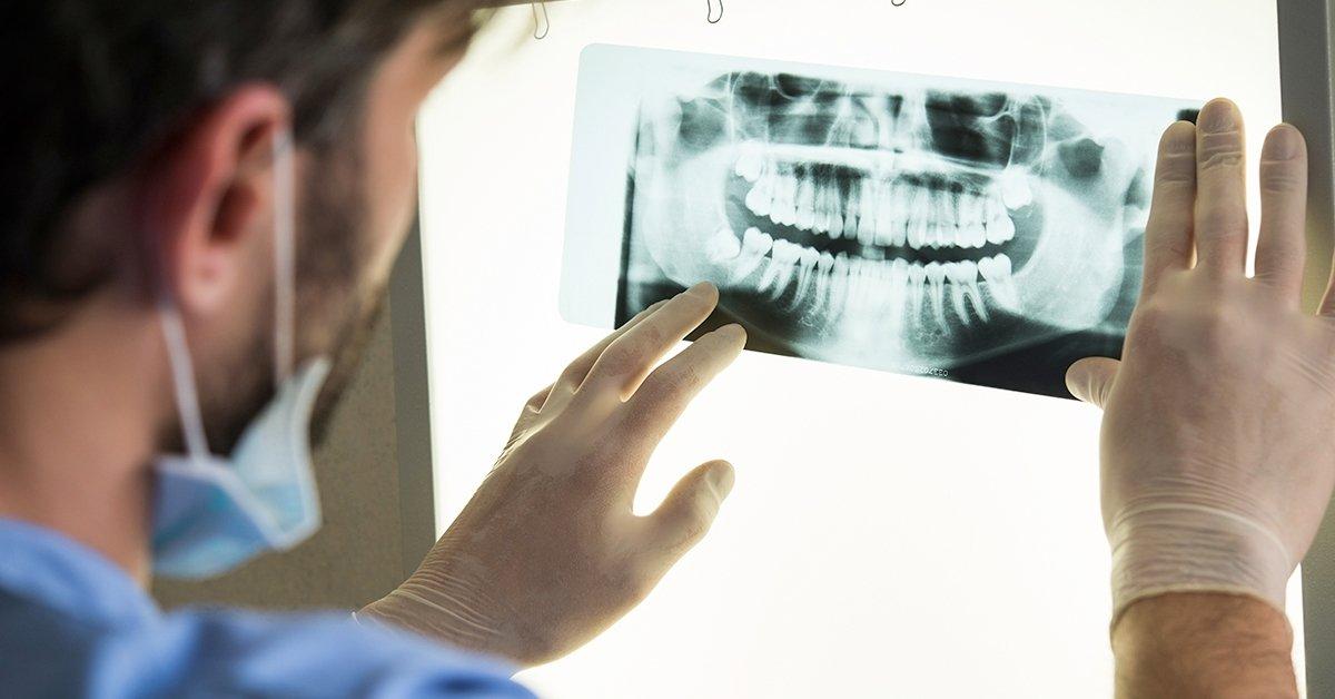 Mérd fel fogaid állapotát: teljes digitális panoráma röntgen