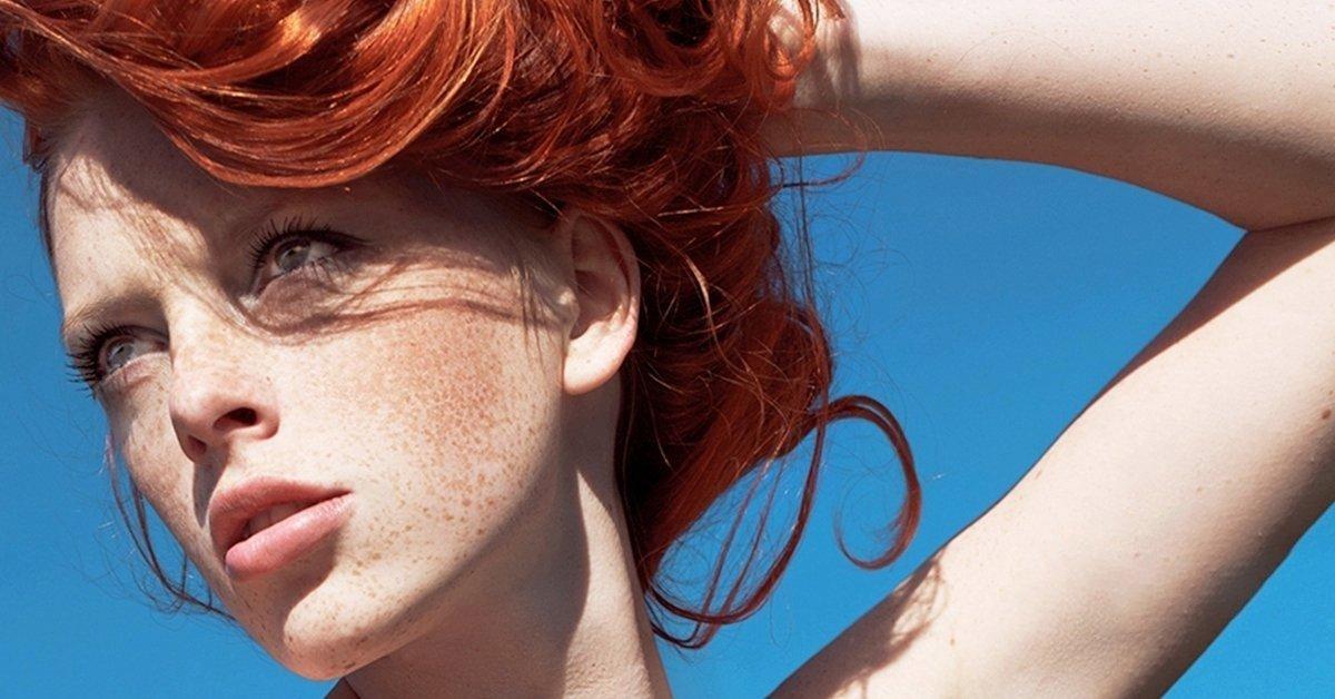 Hibátlan bőr alapozó nélkül: pigmentfolt és hegkezelés