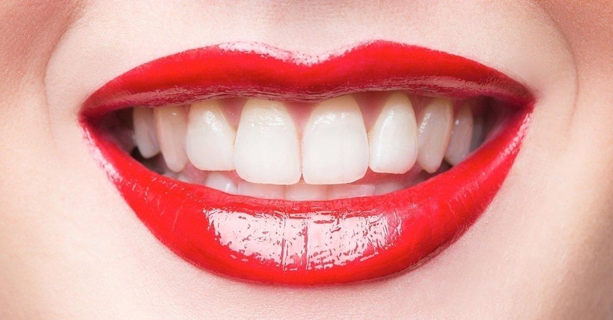 Az egészséges mosolyért: fogkő-eltávolítás, panoráma röntgen