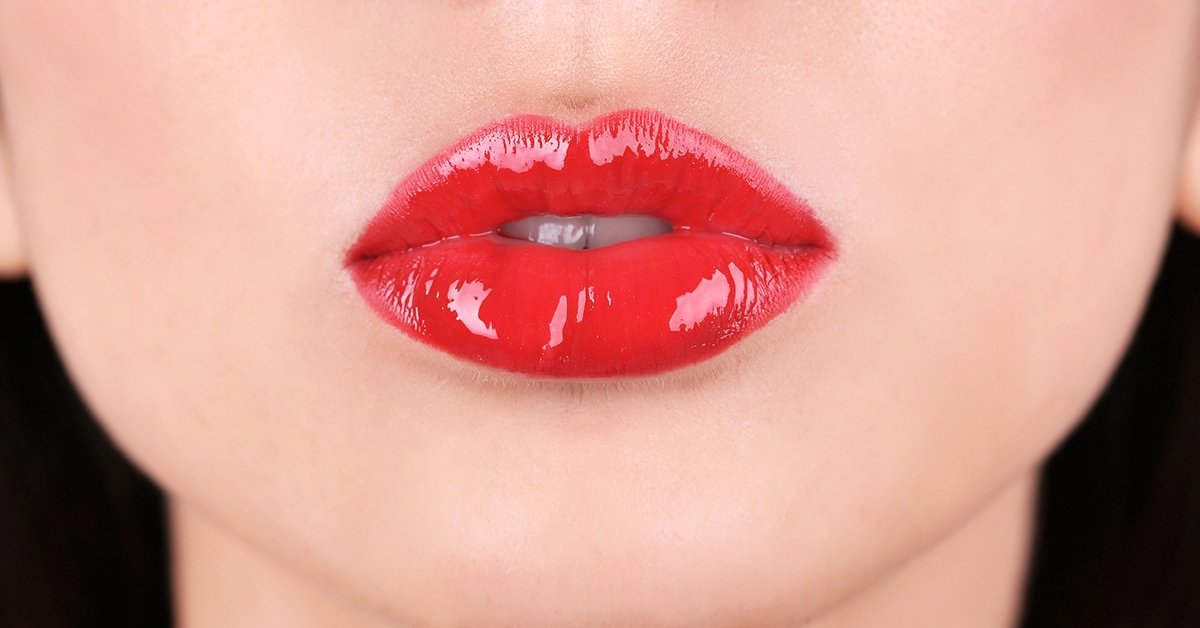 Csókolni való ajkak: 3 alkalmas hyaluronsavas ajakfeltöltés