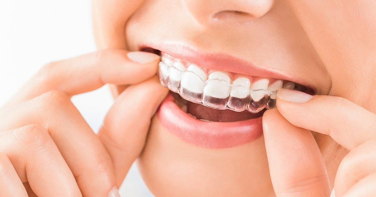 Láthatatlan, gyors fogszabályozás 3D tervezéssel
