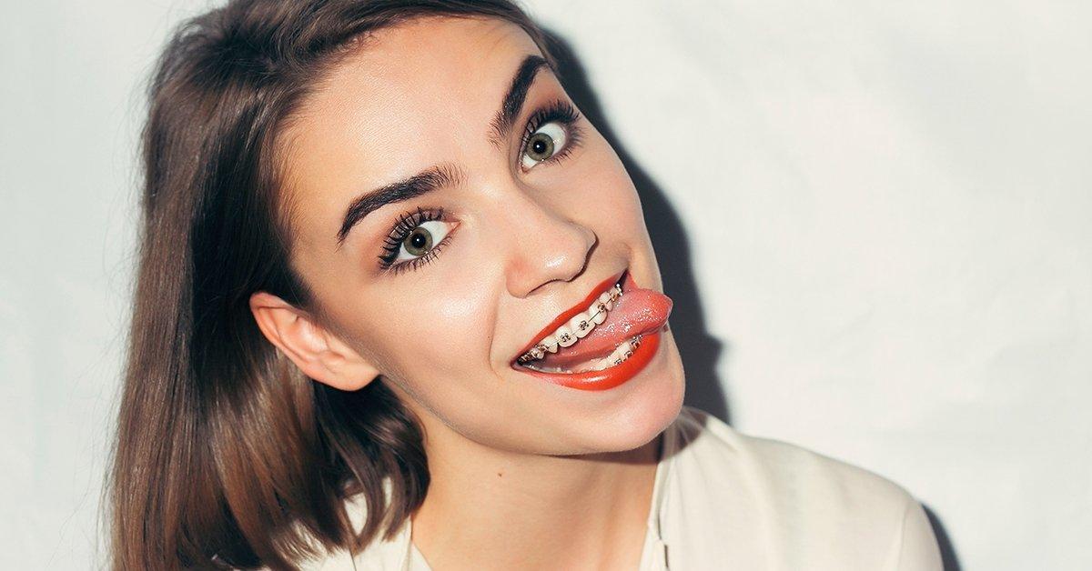 Fém rögzített fogszabályozó mindkét fogívre