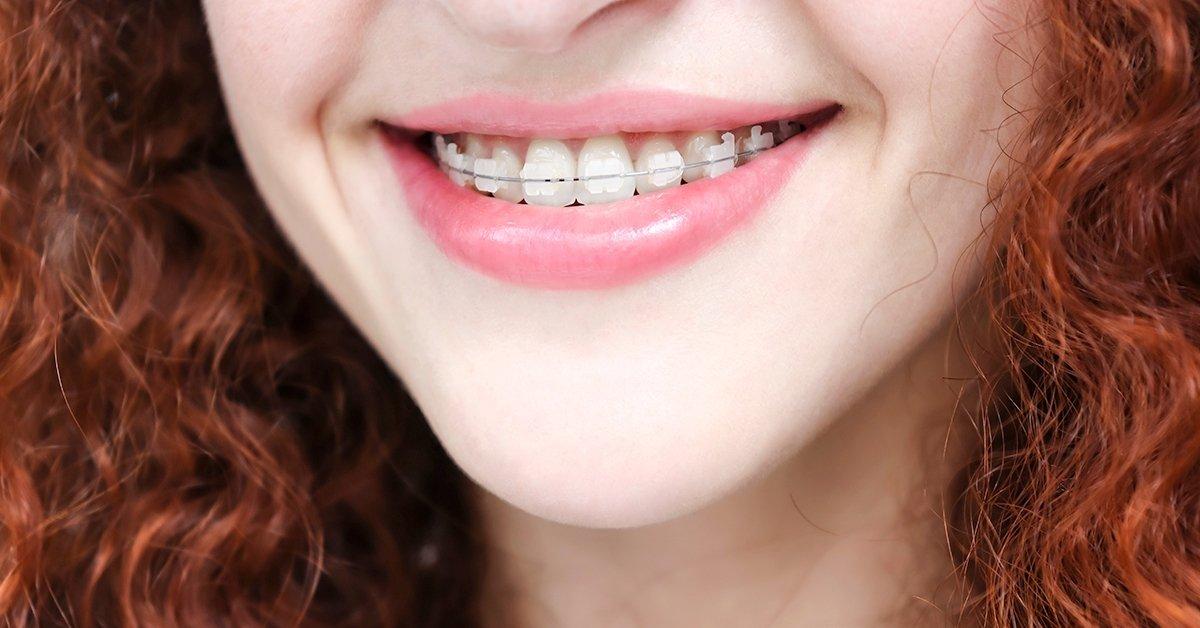 Fém vagy porcelán fogszabályozás extrákkal