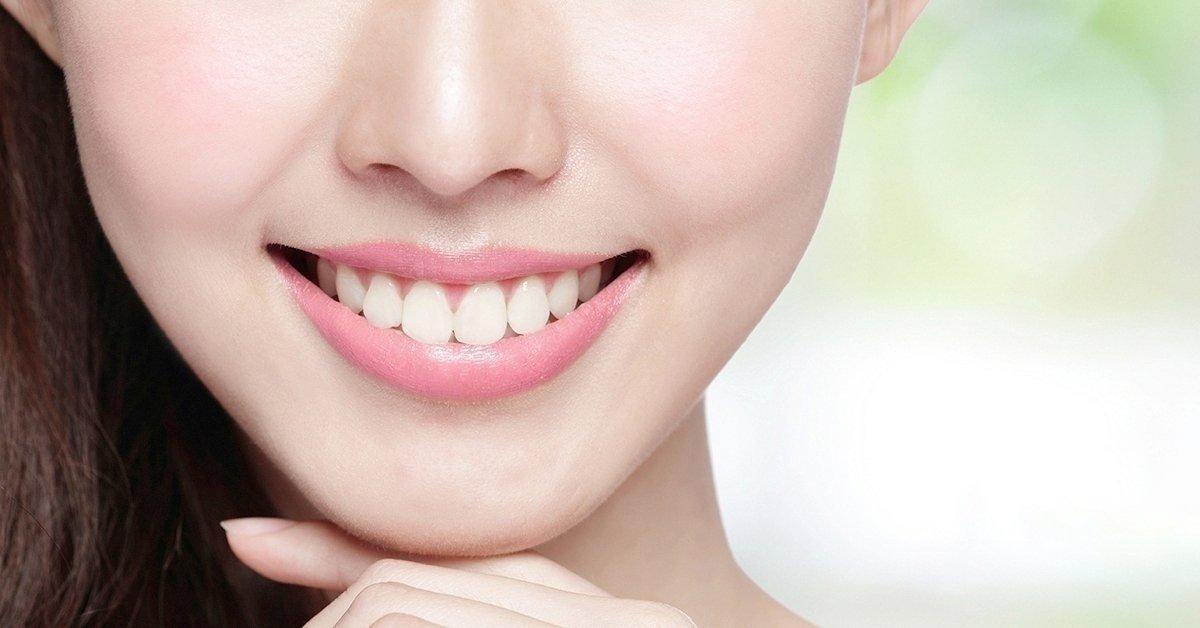 Professzionális fogkő-eltávolítás polírozás, állapotfelmérés