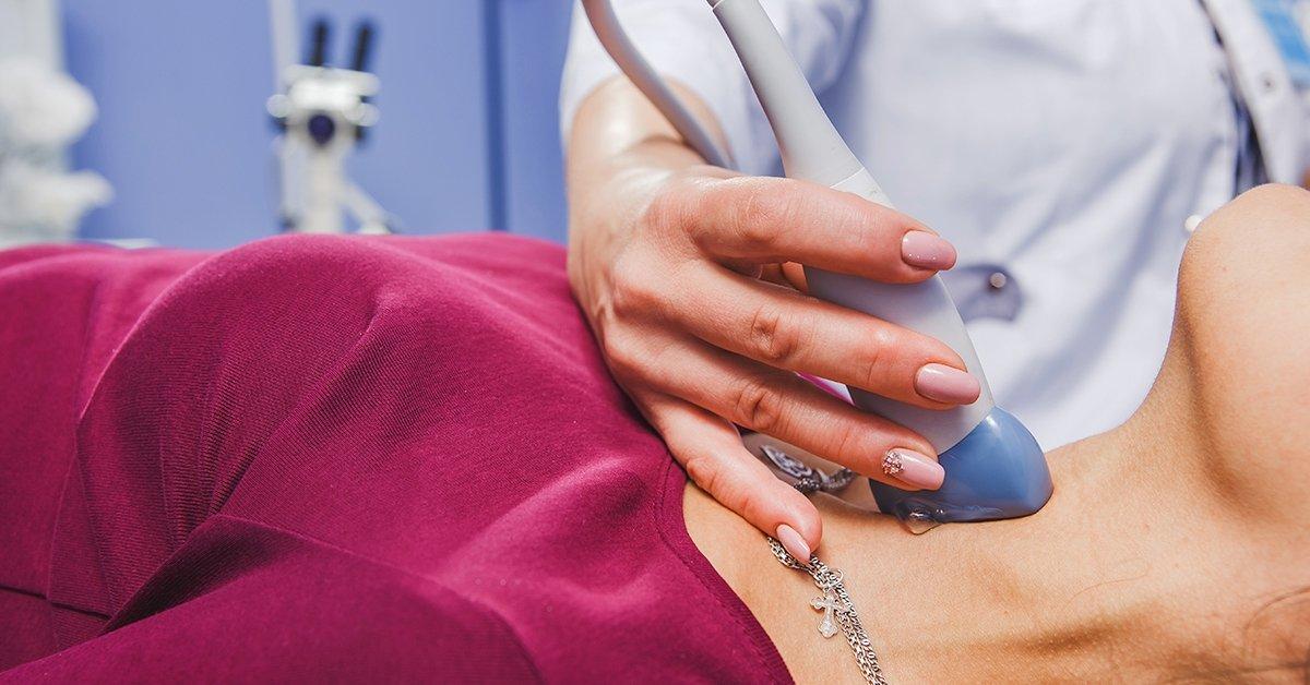 Nyaki erek color Doppler-ultrahang vizsgálata