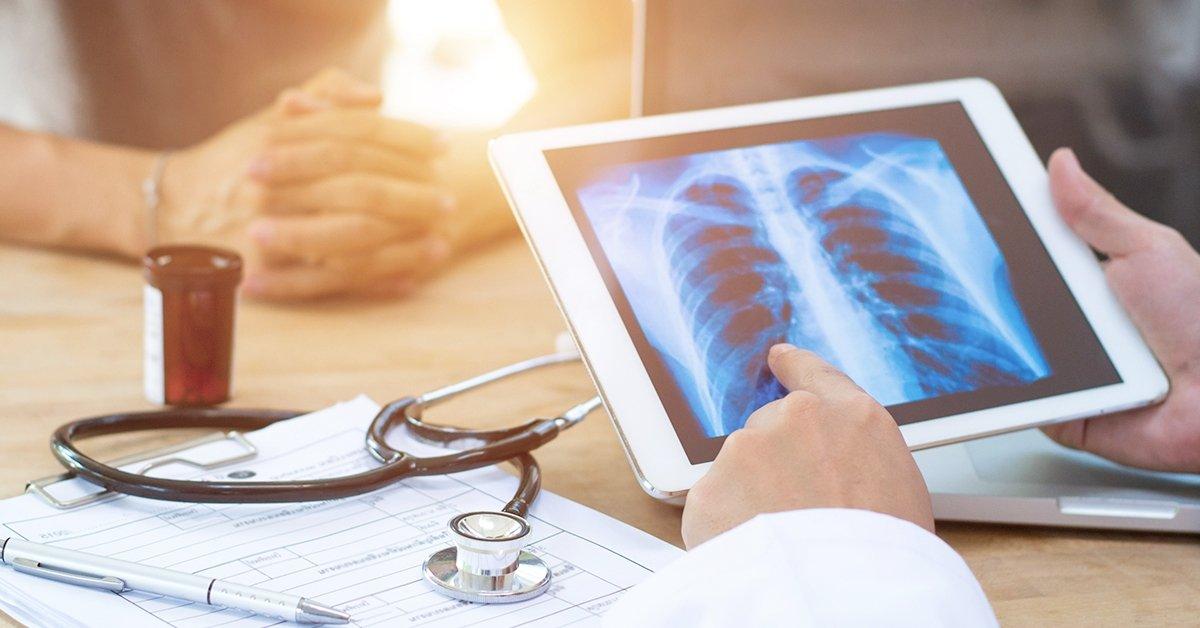 A pontos diagnosztikáért: mellkasröntgen