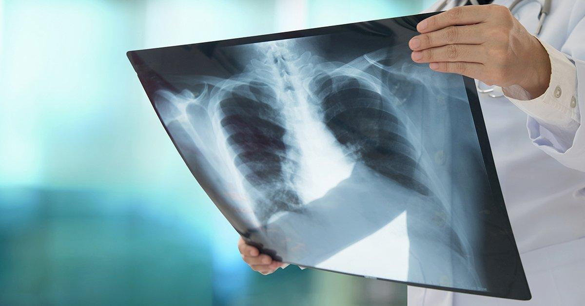Képalkotó-diagnosztika: kétoldali röntgen