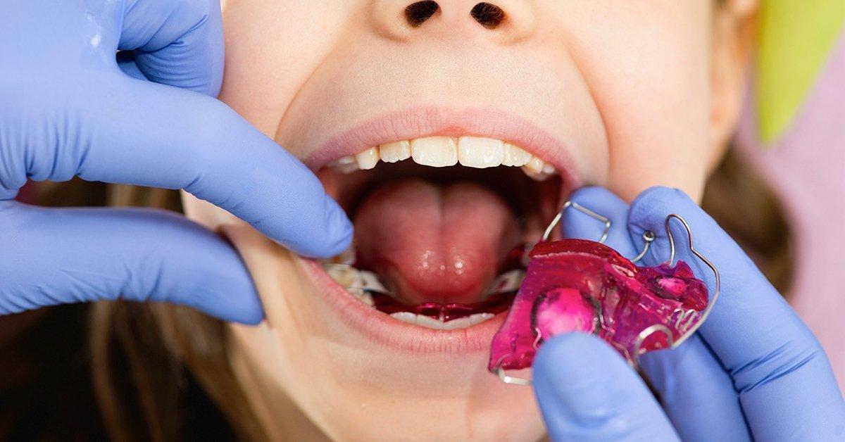 Kivehető fogszabályozó készülék gyerekeknek 1 fogívre