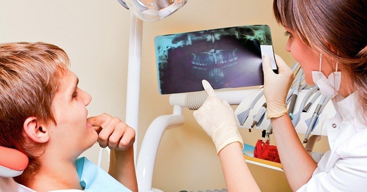 Digitális panoráma röntgen és konzultáció