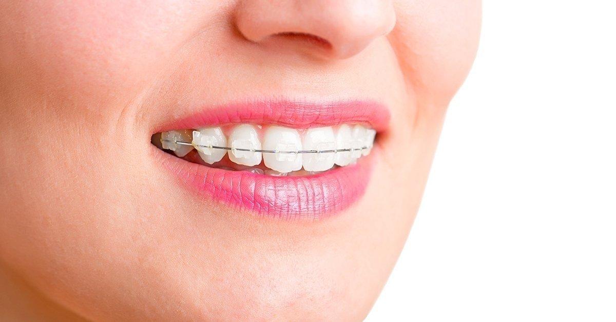Porcelán brackett fogszabályzó