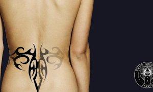 Lézeres tetoválás eltávolítás