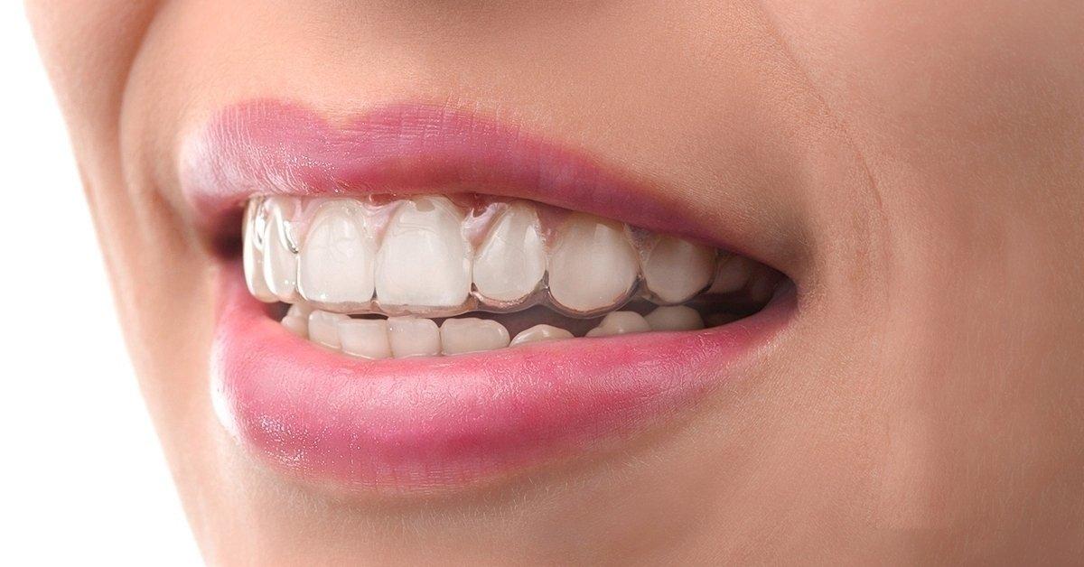 Láthatatlan fogszabályzás